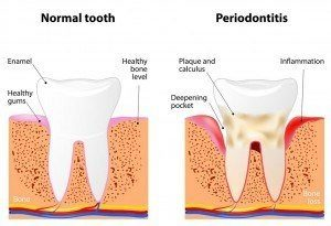 Graphic showing comparison between normal tooth and tooth with Periodontal Disease (Gum Disease)